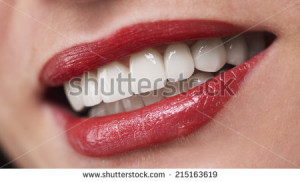 stock-photo-young-woman-smiling-with-bleach-implants-215163619