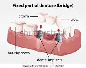 stock-vector-illustration-of-a-fixed-partial-denture-bridge-131953910